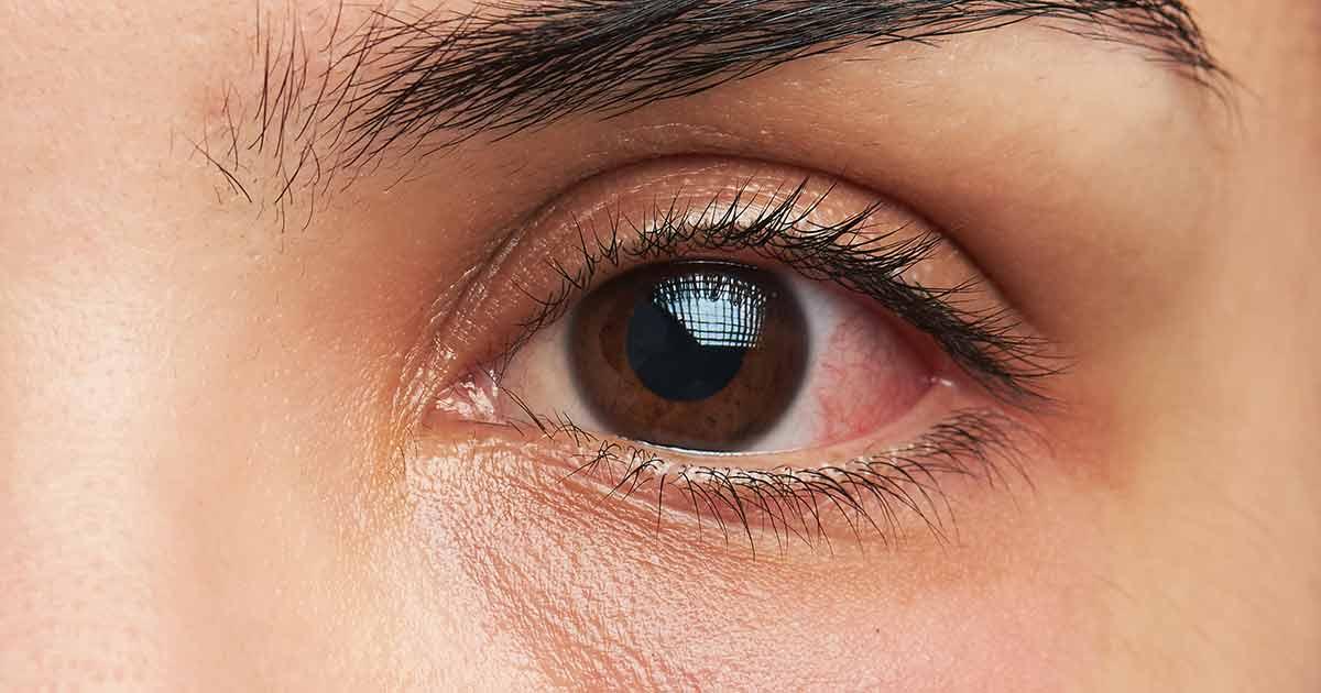 ögoninflammation hos vuxna